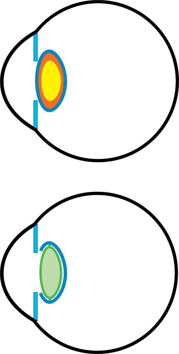 Der postoperative Kataraktpatient. Screening in der Augenoptik (9 ...