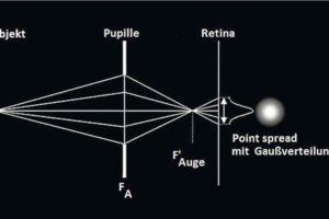 Bild_1_Spreizung__Gauss.jpg